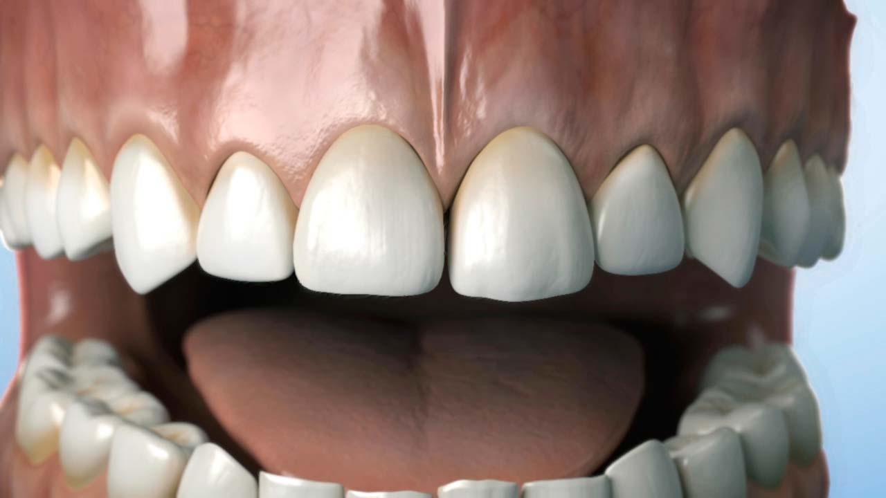 odontología 3D, Virtual Art animación 3d vídeo 3D
